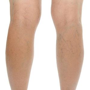 Как избавиться от сосудистых звездочек на ногах - причины, симптомы 2
