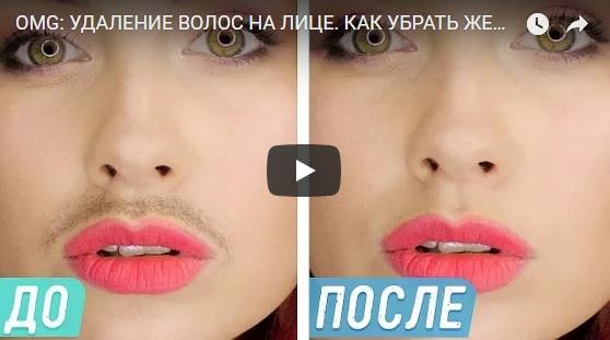 Как убрать или удалить женские усики на лице - интересное видео