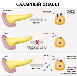 Сахарный диабет 1 типа - как распознать и как лечить 1