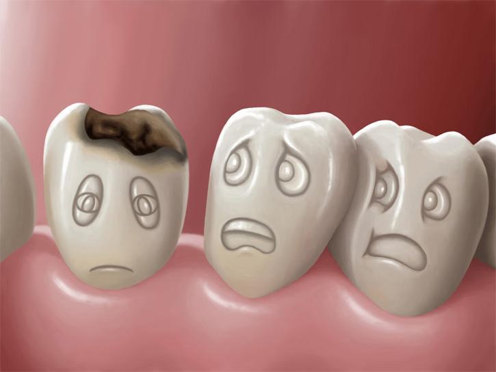 Кариес зубов - лечение заболевания, симптомы, профилактика 1