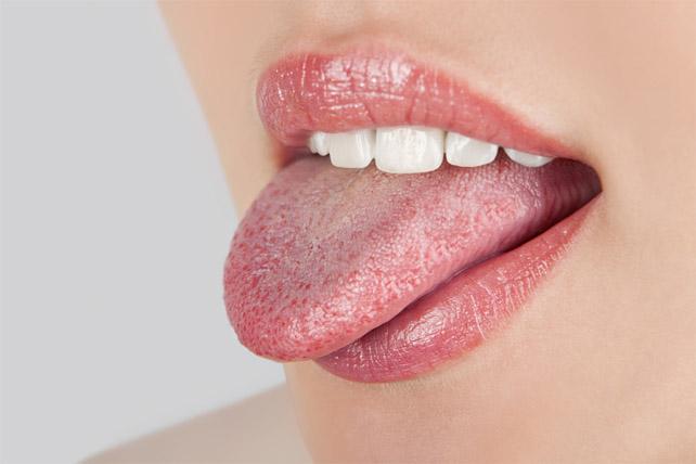 Как лечить язвочки на языке - домашние средства, причины появления 1
