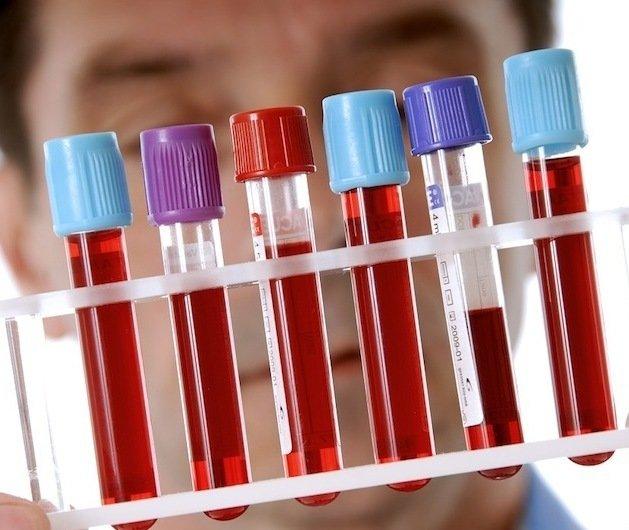 Сколько в человеке литров крови Объем крови в теле человека 1