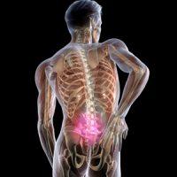 Что такое люмбаго с ишиасом - причины, способы лечения 1