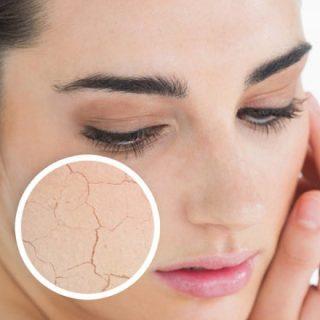 Как восстановить кожу после обветривания 1