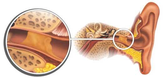 Почему образуются серные пробки в ушах (2)
