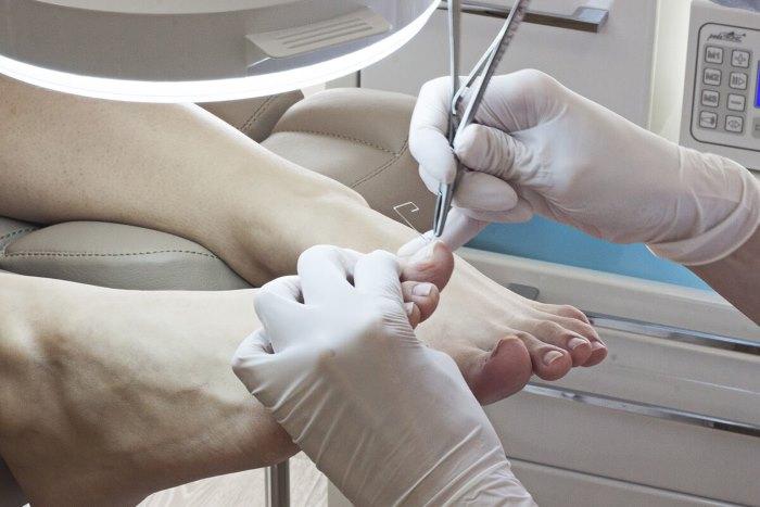 Отмирает ноготь на большом пальце ноги, как удалить 1
