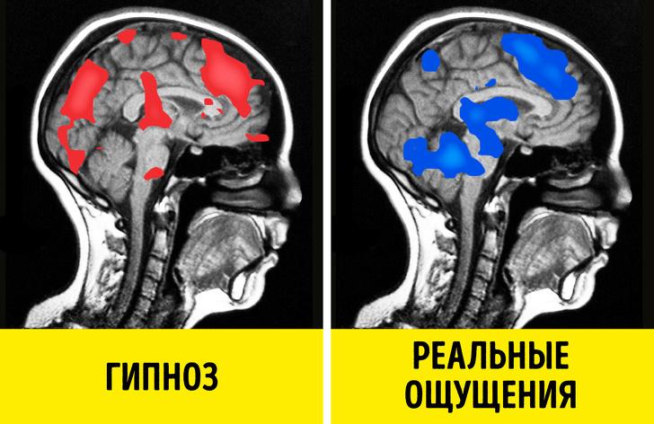 Какая наука стоит за гипнозом