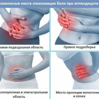 Основные признаки аппендицита