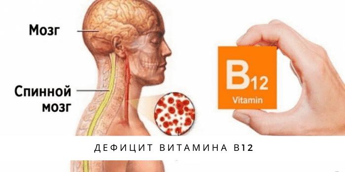 дефицита витамина В12